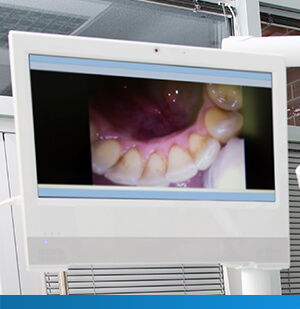 screen showing image from an intraoral camera
