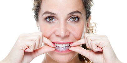 woman placing Invisalign aligners on her teeth