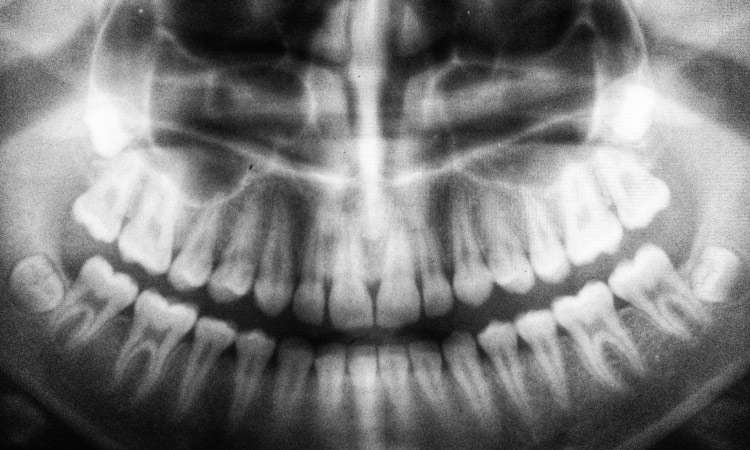 Black and white panoramic dental x-ray of the mouth of a patient